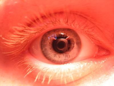 око за око око, объектив